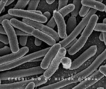 Consiguen neutralizar bacterias sin usar antibióticos: con nanopartículas